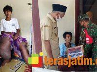 Anggota Koramil Beri Bantuan ke Penderita Kaki Gajah di Turi Lamongan