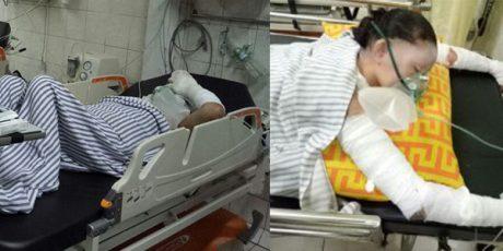 Masak Bakso Gas Elpiji Bocor, 2 Wanita di Jombang Alami Luka Bakar Parah